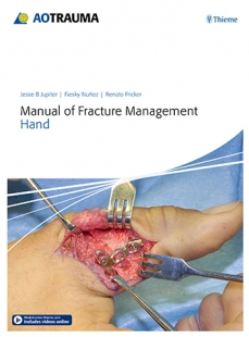 View Details for Manual of Fracture Management - Hand