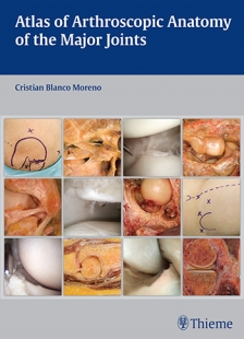 View Details for Atlas of Arthroscopic Anatomy of Major Joints