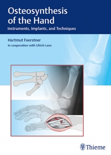 View Details for Osteosynthesis of the Hand