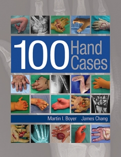 View Details for 100 Hand Cases
