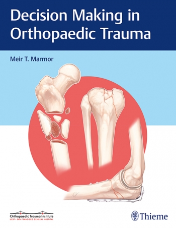 View Details for Decision Making in Orthopaedic Trauma