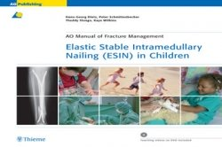 View Details for Elastic Stable Intramedullary Nailing (ESIN) in Children