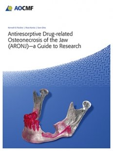 View Details for Antiresorptive Drug-Related Osteonecrosis of the Jaw (ARONJ) - A Guide to Research