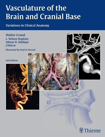 View Details for Vasculature of the Brain and Cranial Base