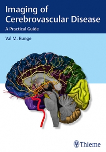 View Details for Imaging of Cerebrovascular Disease