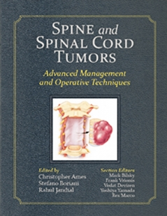 View Details for Spine and Spinal Cord Tumors