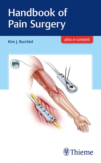 View Details for Handbook of Pain Surgery