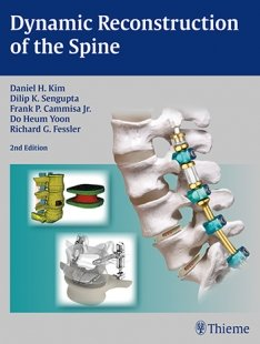 View Details for Dynamic Reconstruction of the Spine