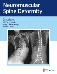 View Details for Neuromuscular Spine Deformity