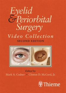 View Details for Eyelid and Periorbital Surgery Video Collection