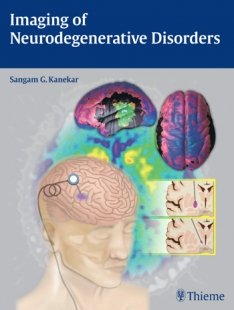 View Details for Imaging of Neurodegenerative Disorders