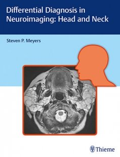View Details for Differential Diagnosis in Neuroimaging