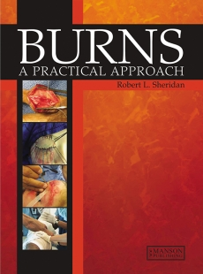 View Details for Burns