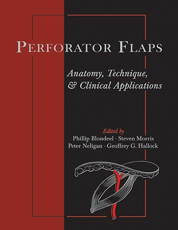 View Details for Perforator Flaps: Anatomy, Technique, & Clinical Applications, Second Edition