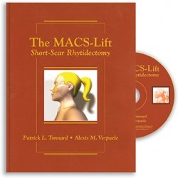 View Details for The MACS-Lift