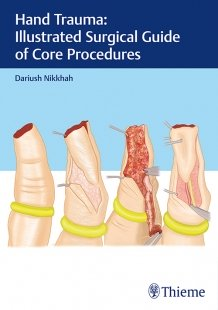 View Details for Hand Trauma: Illustrated Surgical Guide of Core Procedures