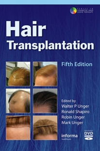View Details for Hair Transplantation