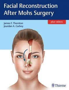 View Details for Facial Reconstruction after Mohs Surgery