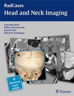 View Details for RadCases Head and Neck Imaging
