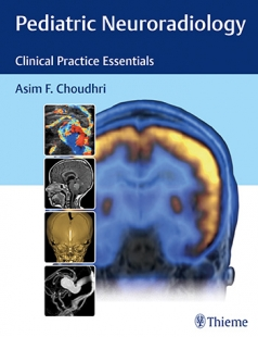 View Details for Pediatric Neuroradiology