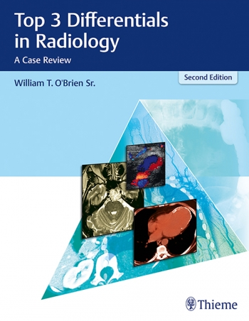 View Details for Top 3 Differentials in Radiology