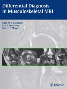 View Details for Differential Diagnosis in Musculoskeletal MR Autoren: Gary M. Hollenberg / Eric P. Weinberg / Steven P. Meyers