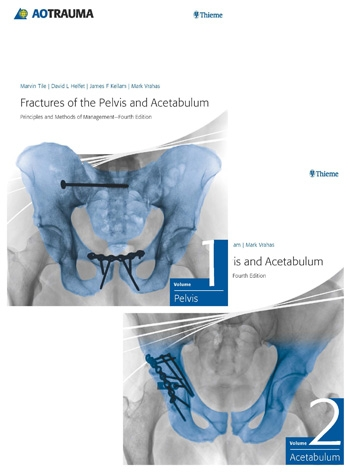 Orthopaedic Surgery Fractures Of The Pelvis And Acetabulum Ao