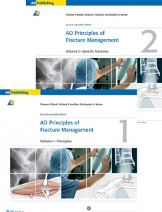 View Details for AO Principles of Fracture Management