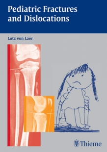 View Details for Pediatric Fractures and Dislocations