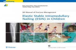 View Details for Elastic Stable Intramedullary Nailing (ESIN) in Children (eBook)