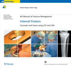 View Details for AO Manual of Fracture Management: Internal Fixators