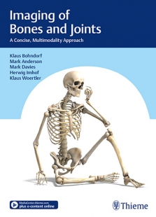 View Details for Imaging of Bones and Joints