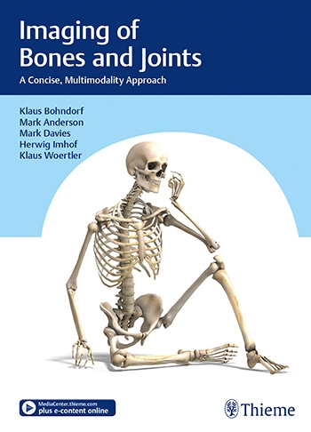 Bohndorf_Imaging_Bone_Joint_9783132406476.indd