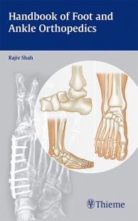 View Details for Handbook of Foot and Ankle Orthopedics