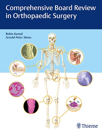 Orthopaedic Surgery | Comprehensive Board Review in Orthopaedic Surgery