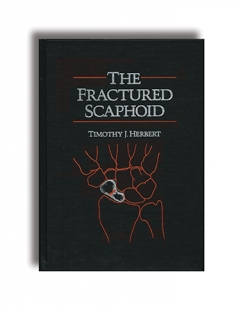 View Details for The Fractured Scaphoid