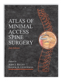 View Details for Atlas of Minimal Access Spine Surgery