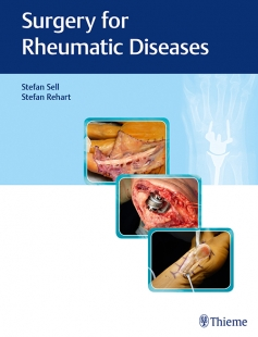 View Details for Surgery for Rheumatic Diseases