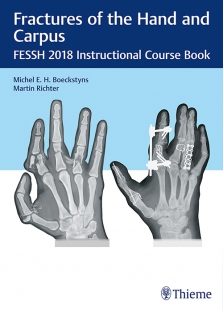 View Details for Fractures of the Hand and Carpus