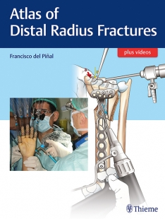 View Details for Atlas of Distal Radius Fractures