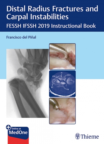 View Details for Distal Radius Fractures and Carpal Instabilities