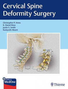 View Details for Cervical Spine Deformity Surgery