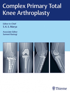 View Details for Complex Primary Total Knee Arthroplasty