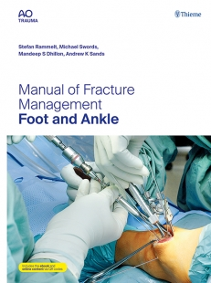 View Details for Manual of Fracture Management - Foot and Ankle