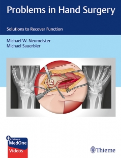 View Details for Problems in Hand Surgery