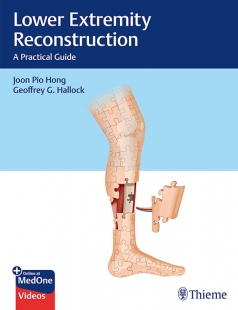 View Details for Lower Extremity Reconstruction
