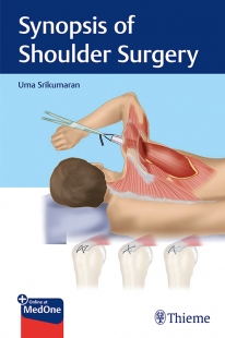 View Details for Synopsis of Shoulder Surgery