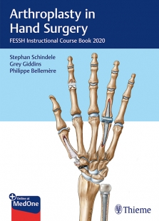 View Details for Arthroplasty in Hand Surgery