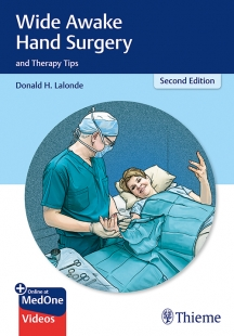 View Details for Wide Awake Hand Surgery and Therapy Tips