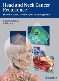 View Details for Head and Neck Cancer Recurrence